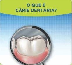 O que é cárie dentária?