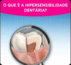 O que é hipersensibilidade dentária?