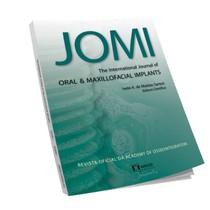 Revista Avulsa JOMI: The International Journal of Oral & Maxillofacial Implants - Editora Napoleão