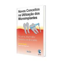 Livro Novos Conceitos na Utilização dos Microimplantes: Pequenos Movimentos Dentários sem Bráquetes - Editora Napoleão