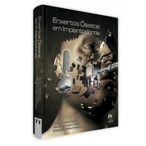 Livro Enxertos Ósseos Em Implantodontia - Editora Napoleão