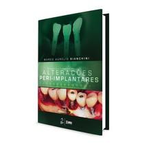 Livro Diagnóstico e Tratamento Das Alterações Peri-Implantares - Grupo Gen
