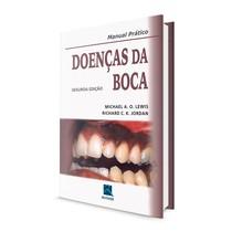 Livro Manual Prático: Doenças da Boca 2ª Edição - Revinter