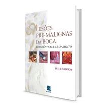 Livro Lesões Pré-Malignas da Boca: Diagnóstico e Tratamento - Revinter