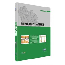 Livro Mini-Implantes - Editora Napoleão