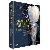 Livro Prótese Sobre Implante: Fundamentos e Sequência Clínica - Editora Napoleão