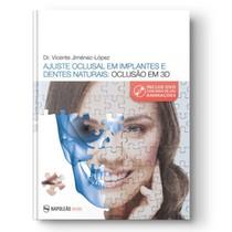 Livro Ajuste Oclusal Em Implantes E Dentes Naturais: Oclusão em 3D - Editora Napoleão